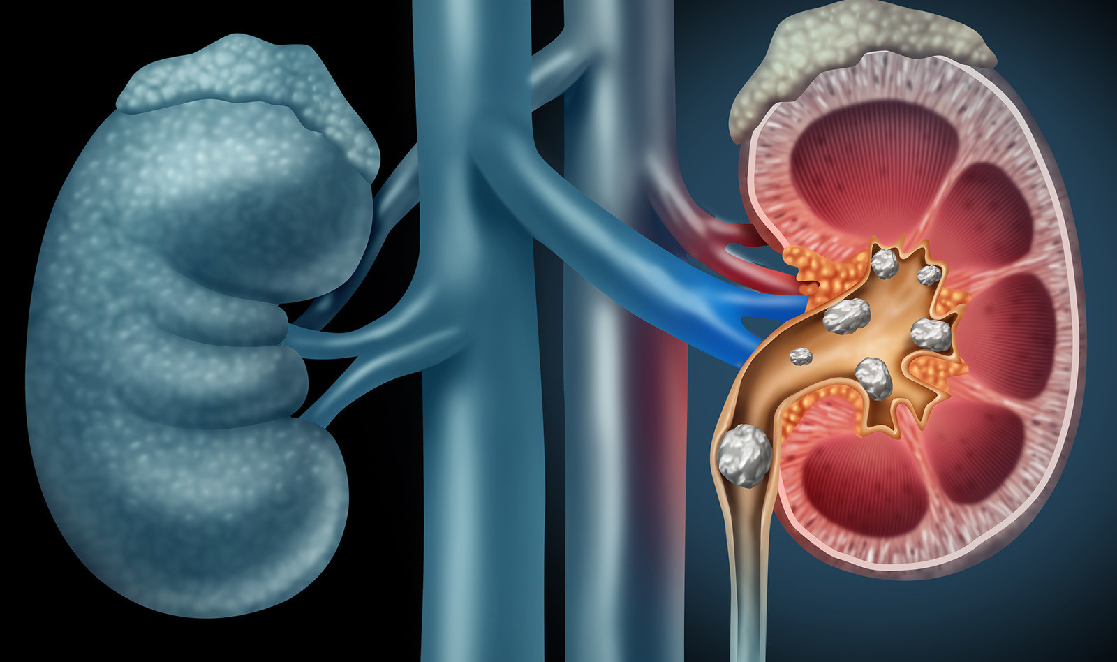 What is renal colic and its causes?
